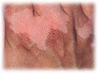 vitiligo behandling göteborg