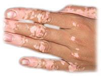 Vitiligo behandling sverige